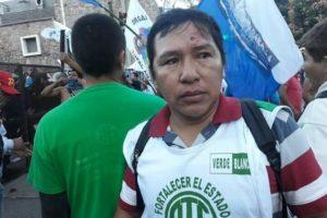 Bruno Bievenido Méndez con una bala de goma en la frente